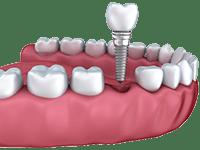 Individual implants