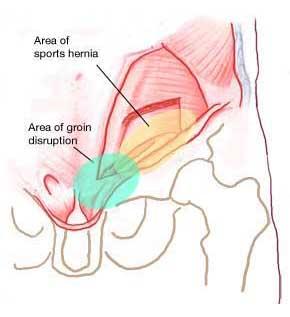 https://i2.wp.com/atlantasportsmedicine.com/orthopedic-surgeon/wp-content/uploads/2009/11/groin-injuries.jpg