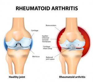 rheumatoid arthritis knee pain Atlantic Medical Group Canton
