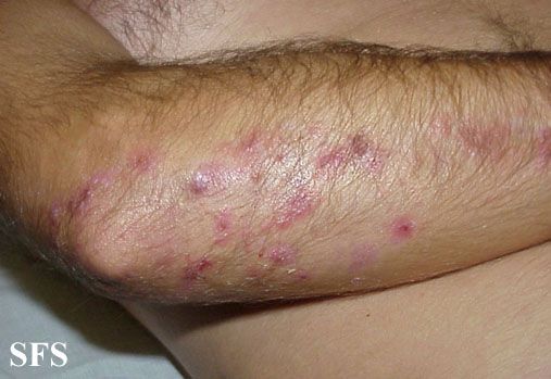 Itchy Rash Behind the Knees and Around the Elbows ...