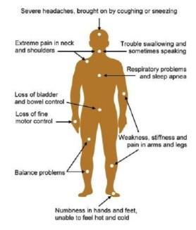 chiarisymptoms2