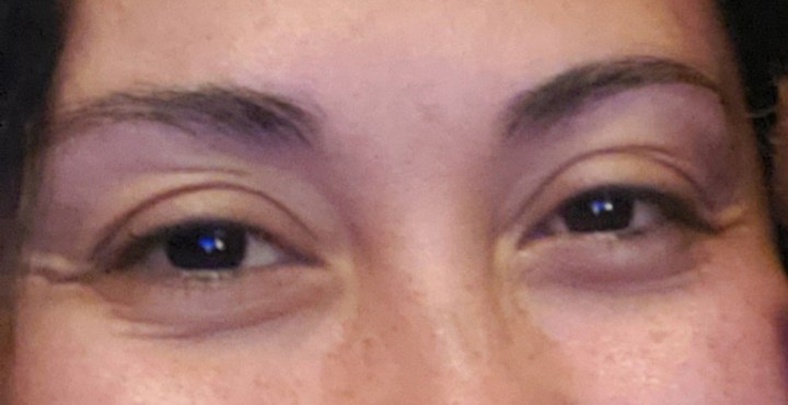 before getting botox