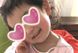 アトピスマイルクリーム 1歳 2歳 顔の保湿 アトピーっ子
