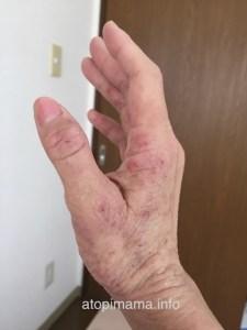 しみずの無添加ボディーソープ, アトピー性皮膚炎, 主婦湿疹, 手湿疹