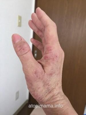 アトピー 手湿疹 主婦湿疹