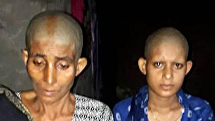 Bihar: Mother And Daughter Assaulted, Tonsured For Resisting Rape Bid by Local Ward Councillor