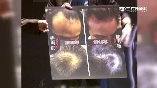 男藝人怕「禿頭」斬星途 不惜砸錢植髮求茂密 | 娛樂 | 三立新聞網 SETN.COM