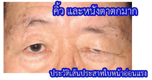 หนังตาข้างซ้ายตกมาก เพราะมีประวัติเส้นประสาทใบหน้าอ่อนแรง