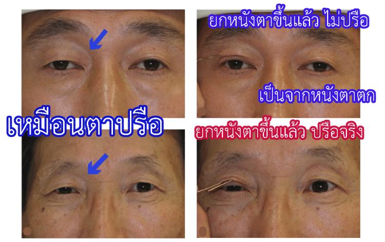 กรณีที่มีหนังตาตก จะแยกระหว่างหนังตาตก หรือ เกิดจากตาปรือ  สังเกตุในเคสล่าง แม้ยกหนังตาขึ้น แต่หนังตายังมีขนาดเล็กอยู่