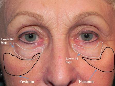 Lower eyelid Festoons