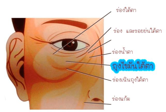 ลักษณะของตาล่างของคนที่เริ่มมีอายุ