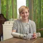 First UK user receives world's most lifelike bionic hand