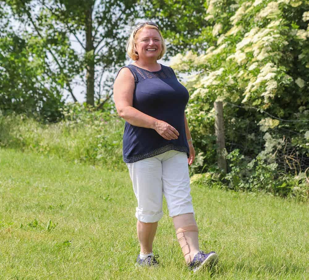 Denise Park orthosis image