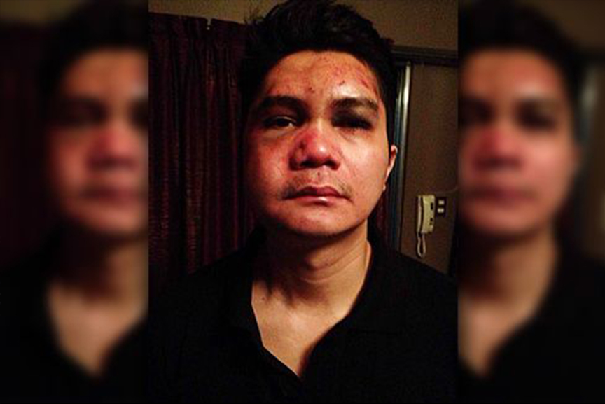 Vhong Navarro Beaten