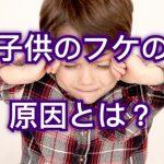 子供のフケの原因と対策!子供の頭皮トラブルについて