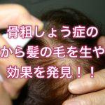 骨粗しょう症の薬から髪の毛を生やす効果を発見!!