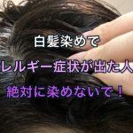 白髪染めでアレルギー症状が出た人は絶対に染めないで!