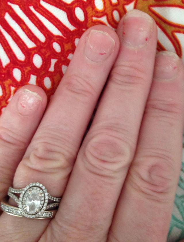 My freakishly vile hands