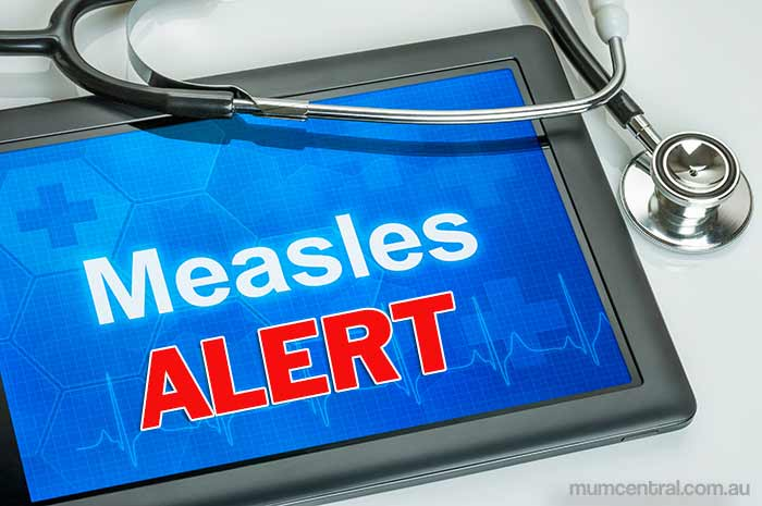 measles, tacoma–pierce county health department, seattle king-county health department,