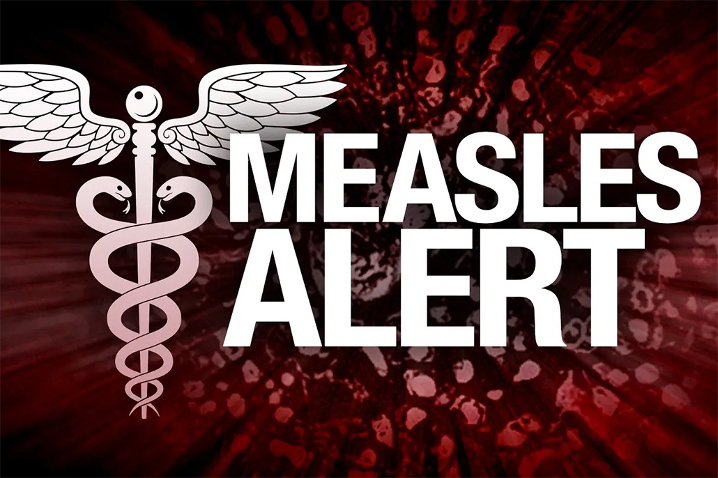 king county measles, measles, mealses outbreak, vaccinate, plague