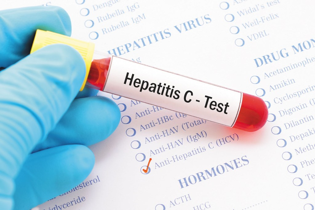 hep c, blood sample, hepatitis c