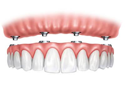 expert dental implants in Auburn