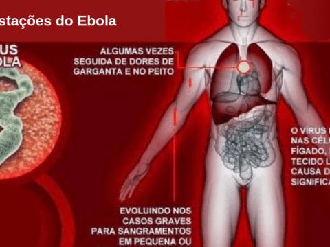 como se manifesta a infeção por vírus ebola