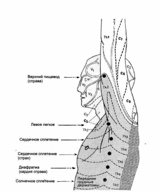 Рис. 28. Аксиллярные дермалгии (по Н. Jarricot, 1985)