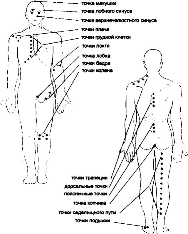 Рис. 33. Второстепенные точки Кнапа (по R. Perronneaud-Ferre, 1999)