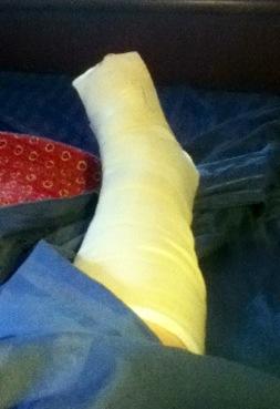 Happy Ankle-versary to Me