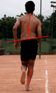Pelvic Drop_Patellofemoral Pain in Runners