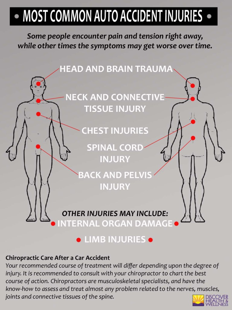 aurora-colorado-chiropratic-10-most-common-auto-injuries-infographic