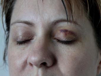 Victim Bruising to face 7 days after assault