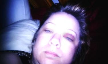 Victim Bruising to face morning after assault