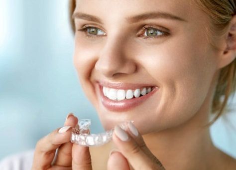 6 Reasons Why Invisalign Is Better Than Traditional Braces