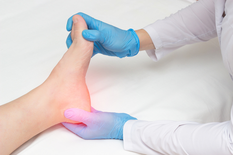 Alleviating Plantar Fasciitis