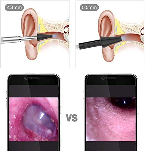 Teslong Otoscope 4.3mm HD Inspection Camera, Ear Microscope, 6 Adjustable LED Lights Works with iPhone, iPad & Android 7