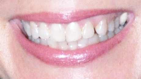 Patricia's Smile