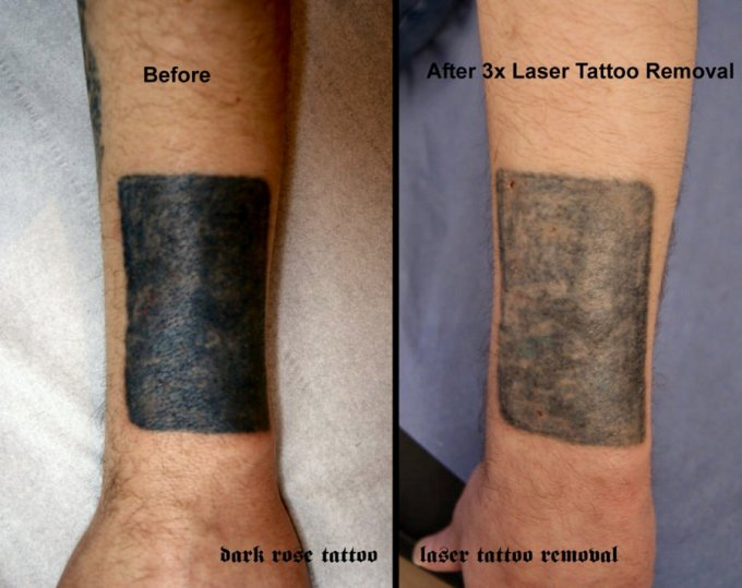 Laser Tattoo Removal – Everything You Need to Know