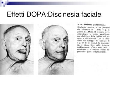 disordini-del-movimento-68-638.jpg