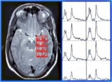 La Espectroscopia por Resonancia Magnética es una técnica no invasiva que aporta información complementaria a la imagen por resonancia magnética.