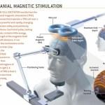 Una nota de precaución sobre el uso de la Estimulación Magnética Transcraneal en el Autismo