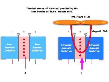 Figura: La cortina de ducha que promueve la inhibición es defectuosa en el autismo (el panel izquierdo). Esto ha dado lugar a utilizar EMT a baja frecuencia para ayudar a fortalecer la envoltura inhibidora de las minicolumnas.