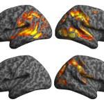 Las gammagrafías cerebrales predicen las habilidades del lenguaje en el autismo