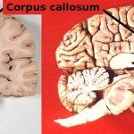 Un haz de fibras nerviosas grueso podría indicar autismo en la infancia