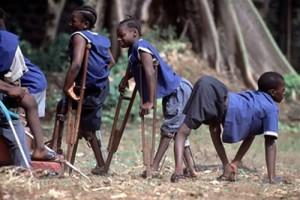 Los efectos de la poliomielitis
