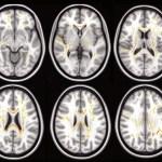 Se encuentran cambios comunes en el cerebro de niños con autismo, TDAH y TOC