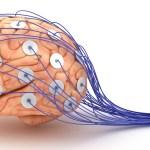 Electroencefalograma y autismo