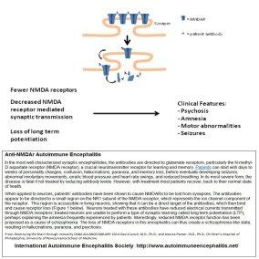 ezgif 5 129b8e47c46f - anti-NMDAr Encephalitis
