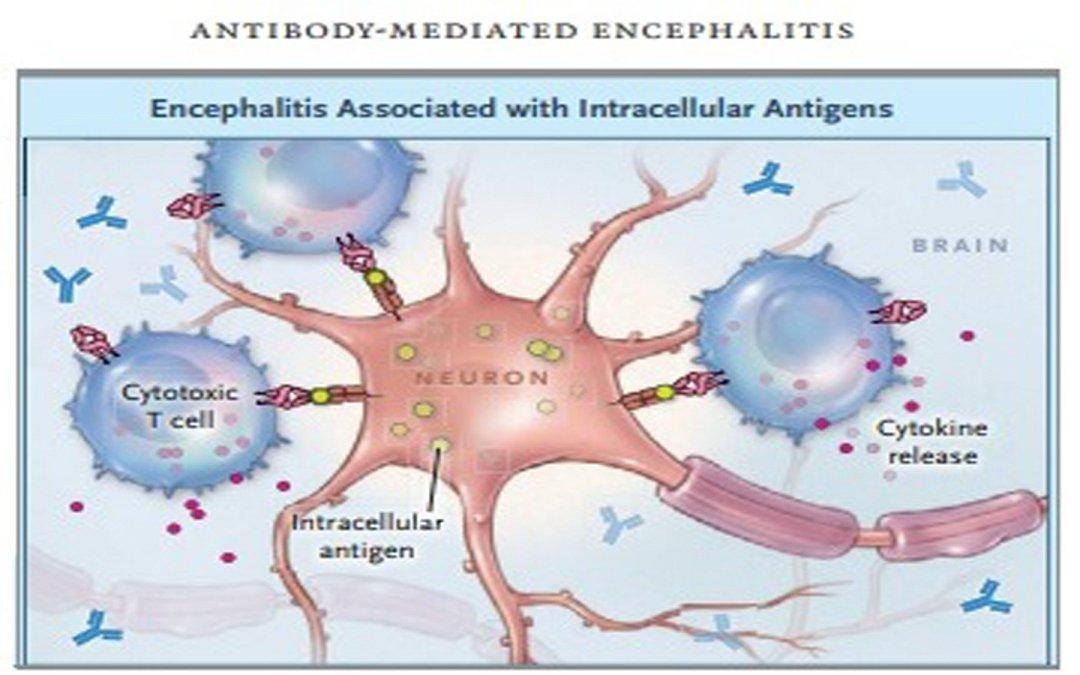 ezgif 5 1c8441ca7f09 - Antibodies-of-autoimmune-encephalitis